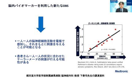 日本メドトロニック、パーキンソン病の外科的治療「脳深部刺激療法『DBS』」の理解向上を目指しセミナーを開催、「DBS」は患者のQOLの改善が期待される治療法も認知向上が課題に